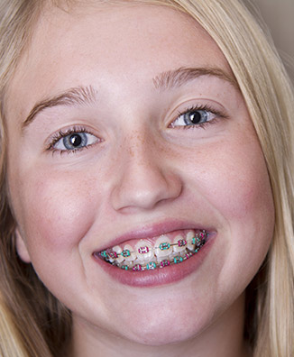 color my braces